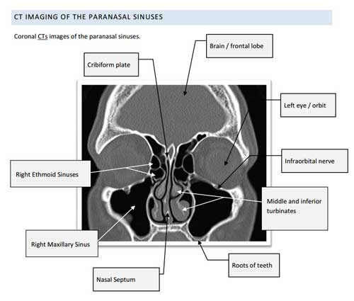 Ct Sinuses Diagram - Auto Electrical Wiring Diagram •
