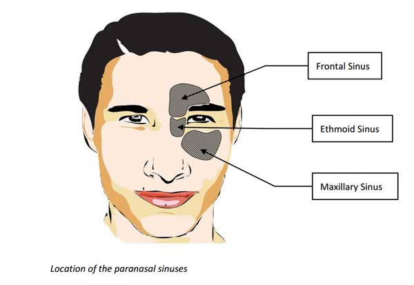 location of sinuses